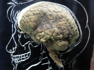 Can poor sleep lead to Alzheimer's or dementia?